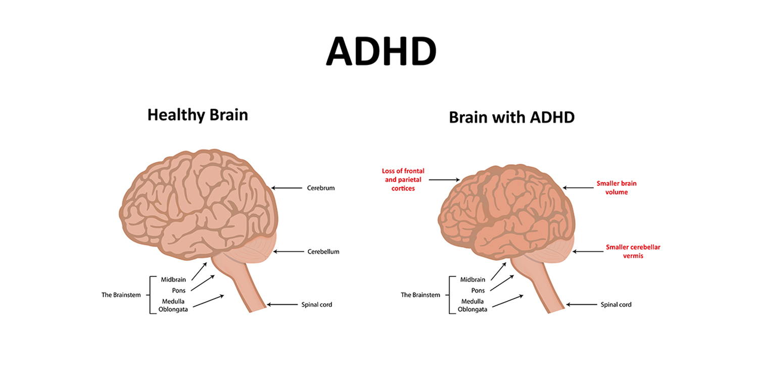 Image result for adhd brain